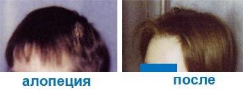 Очаговая (гнездная) алопеция, круговидное, гнездовое облысение